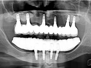 pełny uśmiech na implantach