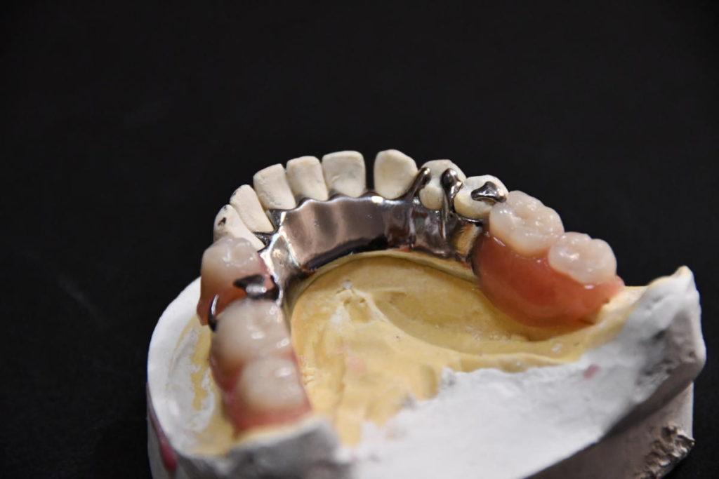drukowana proteza tytanowa