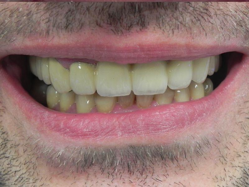 most na zębach