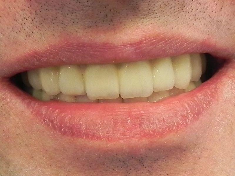 piękny uśmiech na 12 implantach