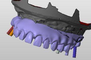 odbudowa wyrostka zębodołowego i zębów na 6 implantach