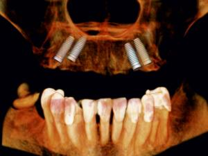 projekt umiejscowienia implantów na podstawie badania CBCT