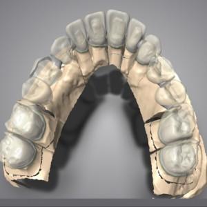 projekt mostu okrężnego z odbudową wyrostka zębodołowego w odcinku zębów 13-15