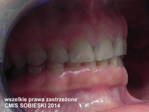 stan początkowy - zęby starte w wyniku bruksizmu