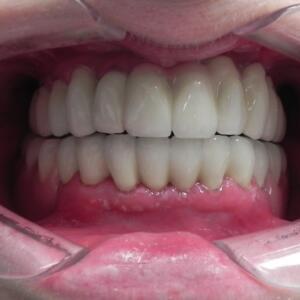 gotowe żeby w ustach Pacjentki