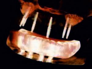 w trakcie zabiegu zdjęcie weryfikujące pozycję implantów