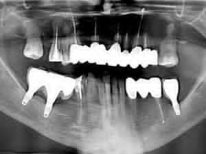 zdjęcie RTG po zakończonym leczeniu