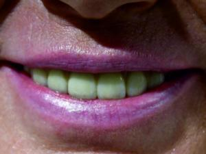 efekt końcowy - piękny uśmiech Pacjentki!